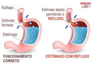 refluxo ácido - Grupo Ábaco